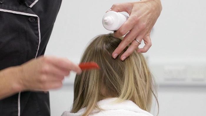 how to treat hair scalp